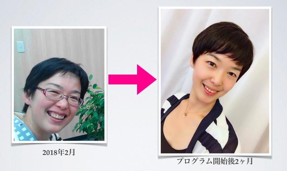 西村明希 シンメトリー美人 ビジュアルアイデンティプログラム YUKIYO